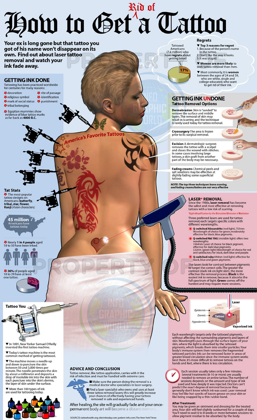 Guide to Tattoo Removal